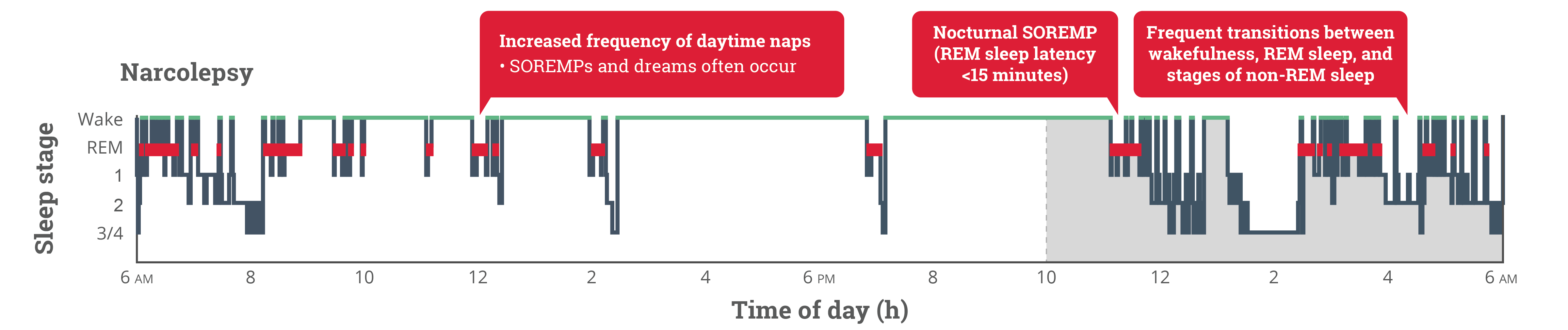Hypnograms Narcolepsy Infographic